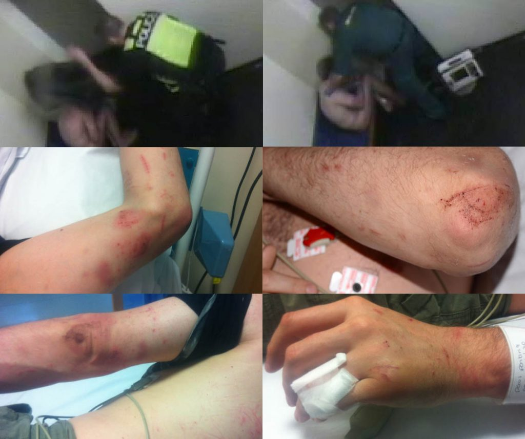 injuries-caused-by-lancashire-police